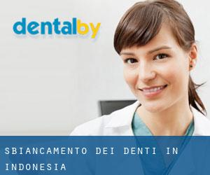 Sbiancamento dei denti in Indonesia